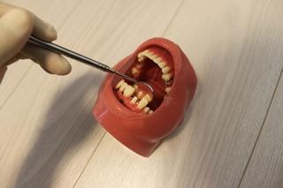 ポジショニング上前歯悪い例(ミラー)