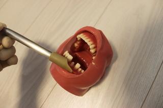 ポジショニング上前歯(一人)