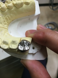 咬合面裂溝の付与完成