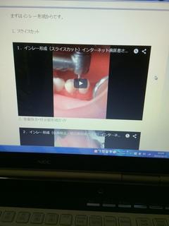 手技の動画