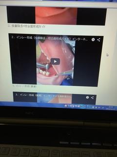 インレー形成の動画