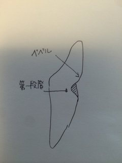 歯頸部CR充填の第一段階の図