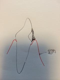オーバー部分の断面図