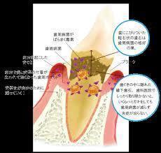 歯周病菌は毒素を出す
