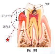 歯肉炎断面図
