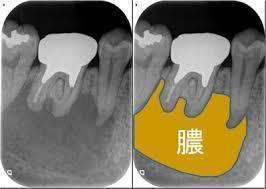 歯根が膿む