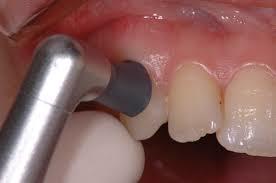 ブラシ・ラバーカップ上の研磨剤をつけ回転させて歯を磨きます