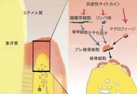 破骨細胞を活性化