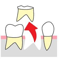 抜歯 イメージ図