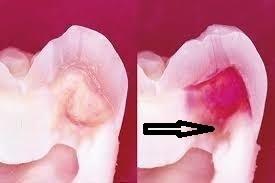 虫歯は中で広がる