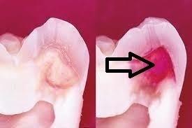 軟化象牙質はドンドン削れる