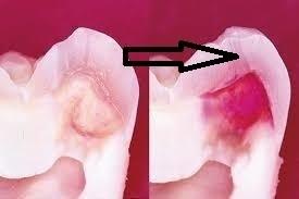 エナメル質部分の虫歯