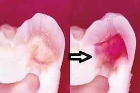健全象牙質は硬くてあまり削れない