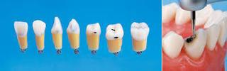 カリエスのある人工歯
