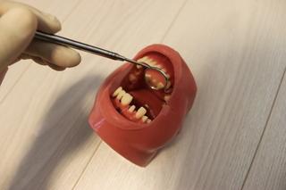ポジショニング上前歯(ミラー)