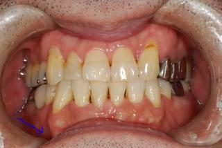 矢印の部分が歯肉歯槽粘膜鏡