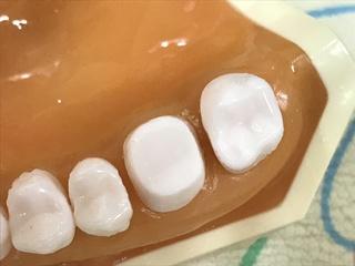 支台歯形成より