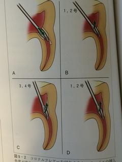 ゲイツドリルによる根管孔明示