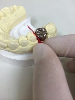 歯と歯の間にはさむ