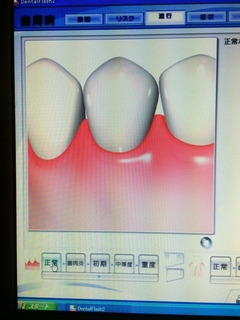 正常な状態の歯肉