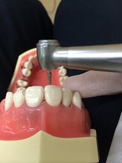 前歯人口歯