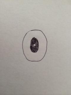 第二段階終了時の歯を上から見た状態の絵