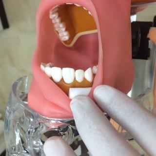 上顎・下顎前歯部の防湿