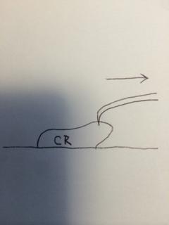 探針を使ってのフローCRの賦形1(隅角)