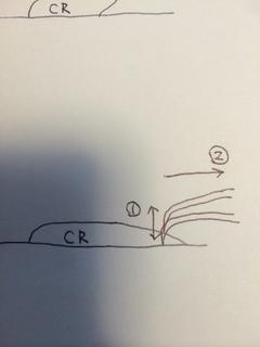 探針での賦形の仕方2