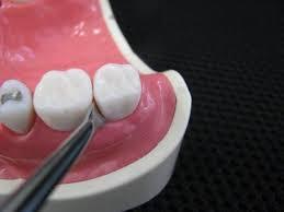 へーベルを歯根と骨の間に沿わせる