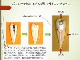死腔をなくし、ばい菌の侵入を防ぐ