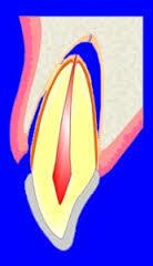 歯が脱臼する