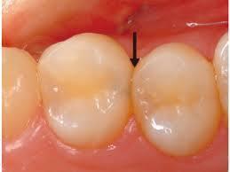 歯と歯の間の虫歯の見え方