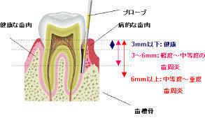 歯周ポケット計測