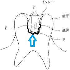 窩洞の内面が凸凹していてもあまり二次カリエスには関係がない