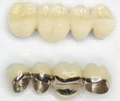連結歯を増やす方が良いかも?3本ブリッジ?4本ブリッジ?2
