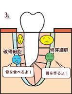 歯の周りにもいる骨芽細胞と破骨細胞