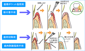 歯周病の色々な治療方法
