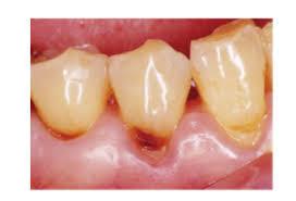 歯頸部に虫歯がある時やWSDがある時
