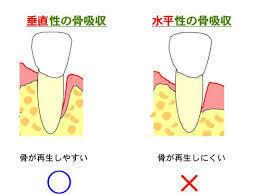 垂直的骨吸収、水平的骨吸収