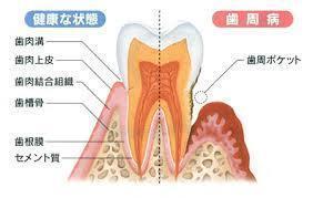 健康な状態と歯周病の比較